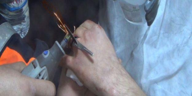 Afad, Hastane Acilinde Yüzük Kesme Operasyonu Yaptı